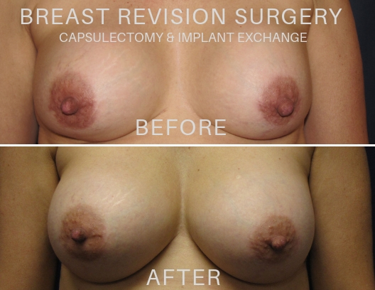 Breast Revision Surgery Before and After Photos