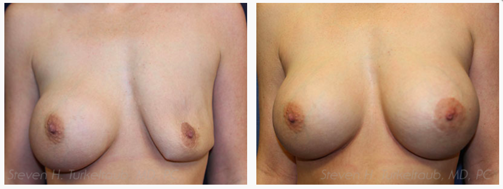 Deflated Saline Breast Implant Repair Before and After