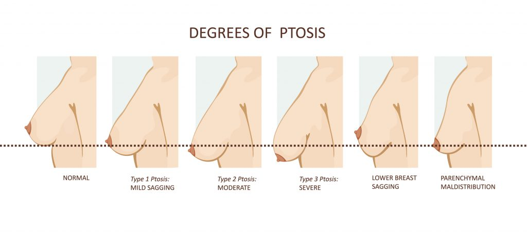 degrees of breast ptosis-img-blog