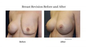 before-and-after-breast-revision-arizona-