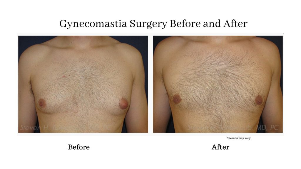 A man showing off his before and after gynecomastia surgery results. Male breast surgery is a great way for men to feel confident again.