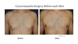 before-and-after-gynecomastia-surgery-1
