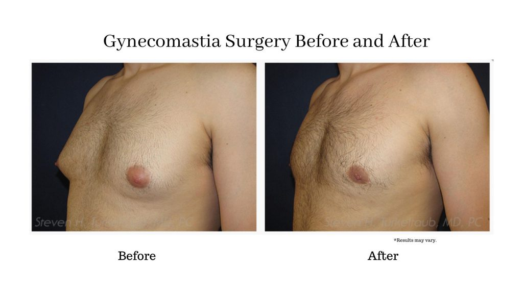 A before and after comparison of a man after having gynecomastia surgery. Sometimes, only liposuction is needed to create dramatic results.