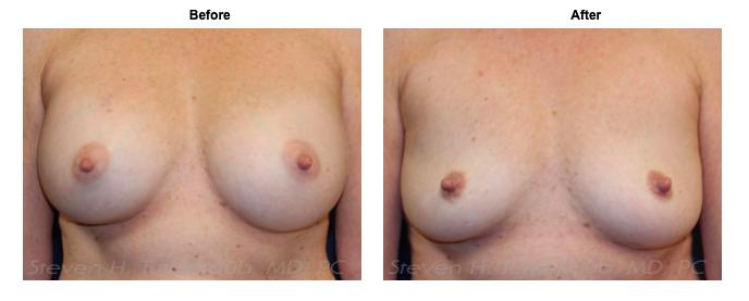 turkeltaub-watermark-breast implant removal 6-img-blog