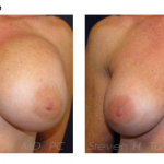 turkeltaub-watermark-breast-revision-6-img-blog