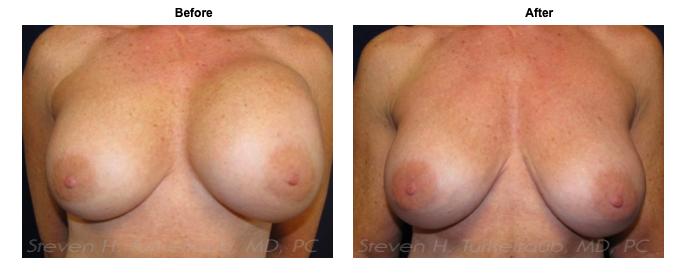turkeltaub-watermark-breast-revision-6-img-blog