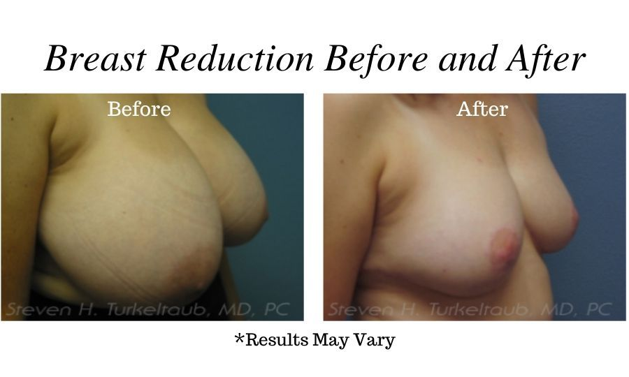Before and after image showing the results of a breast reduction surgery performed in Scottsdale, Arizona.