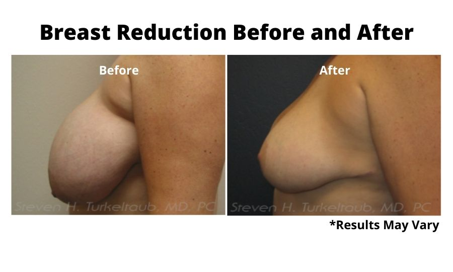 Before and after image showing the results of a breast reduction on a woman performed in Scottsdale, AZ.