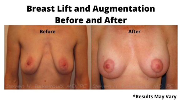 Before and after image showing the results of a breast lift and breast augmentation performed in Scottsdale, AZ.
