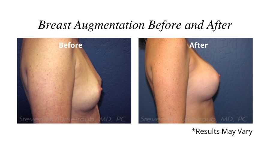 Before and after image showing the results of a breast augmentation in Scottsdale, AZ.