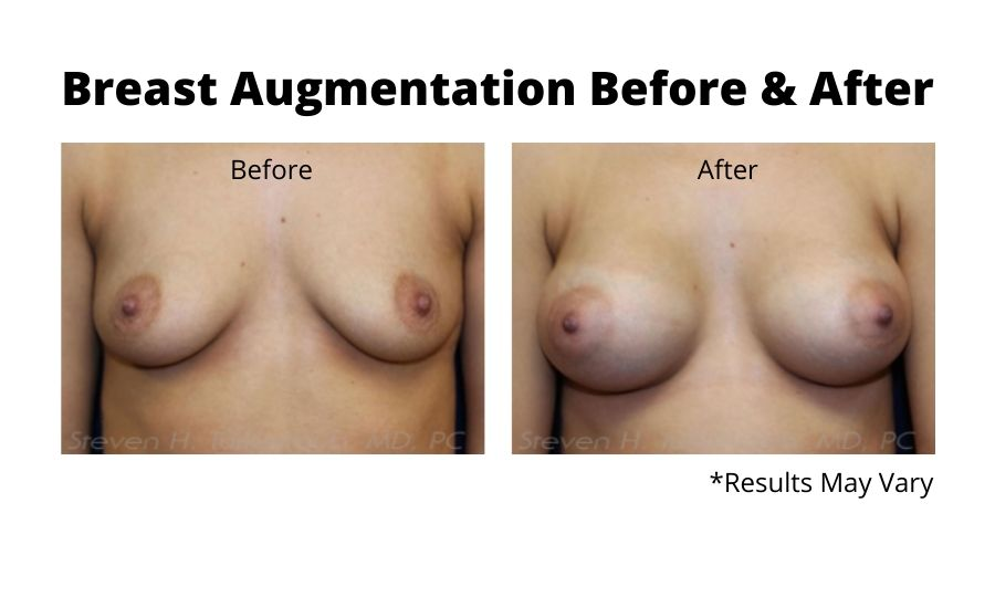Before and after image showing the results of a breast augmentation performed in Scottsdale, AZ.