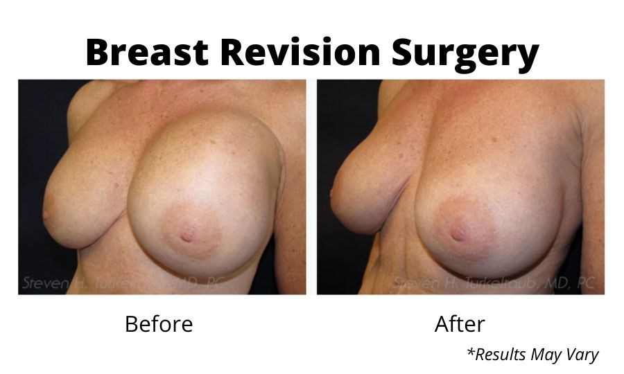 Before and after image showing the results of a breast revision surgery performed in Scottsdale, AZ.