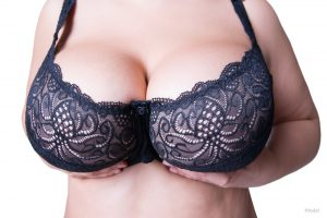 """For many women, their first and possibly only area of interest in plastic surgery is breast augmentation. This procedure of enlarging one's breasts has consistently been among the most popular plastic surgery procedures in the United States for decades. With breast augmentation, women can safely and effectively achieve much larger and more shapely breasts, but as with all good things, there may be risks associated with extremes. Perhaps, this could be a memorable example of the expression, """"too much of a good thing!"""" Of course, there will be many who will enthusiastically beg to differ on this. So the question is, how large can breasts be augmented and is it possible to go too big? Should You Maintain Breast to Body Proportion? When trying to determine the right implant size for your breast augmentation, it is most prudent that your body proportions are taken into consideration. This is both true if you are seeking """"proportionality"""" and if you are desiring to be disproportionately large with a fake look. Depending on what look you are seeking, there are quite a latitude of choices for each of these that can be more precisely determined based on other factors. What Are Potential Consequences of an Oversized Implant? There are both objective and subjective considerations that can be used to determine what size and/or configuration implant would be considered to be oversized for a particular individual. What may seem to be too large for one patient may be too small for another. Not only will these vary considerably among patients, but they will also do so among physicians. Furthermore, there is no truly objective formula that will yield exactly one implant size and configuration based on one's particular unique body parameters and goals. To a great extent, this illustrates the importance of both art and science in the practice of plastic surgery. That being said, there can be complications and other untoward issues that can be associated with large breast implants. The"""