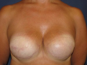 After breast reconstruction - Frontal view