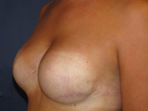After breast reconstruction - Oblique view