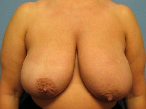 Before Breast Reduction - Frontal View